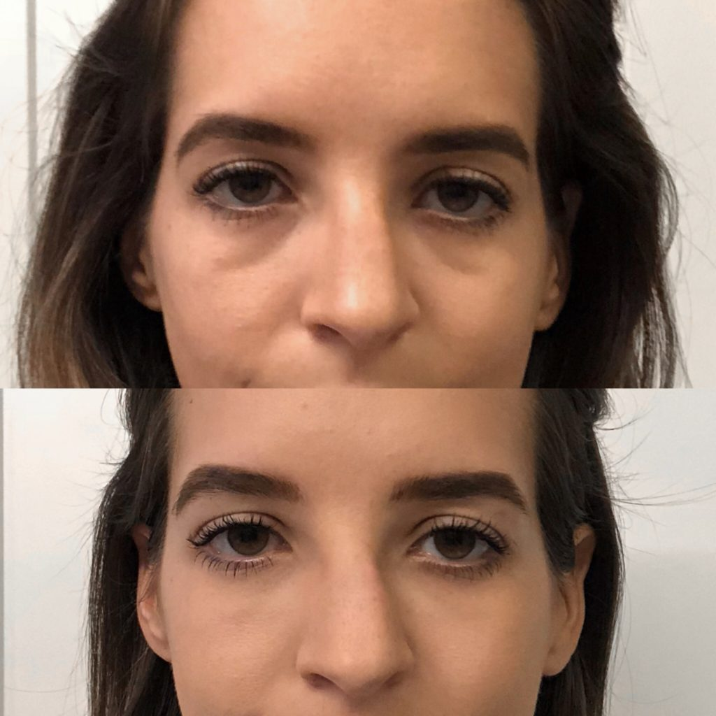 Under Eye Filler Before And After Pics - All You Need Infos