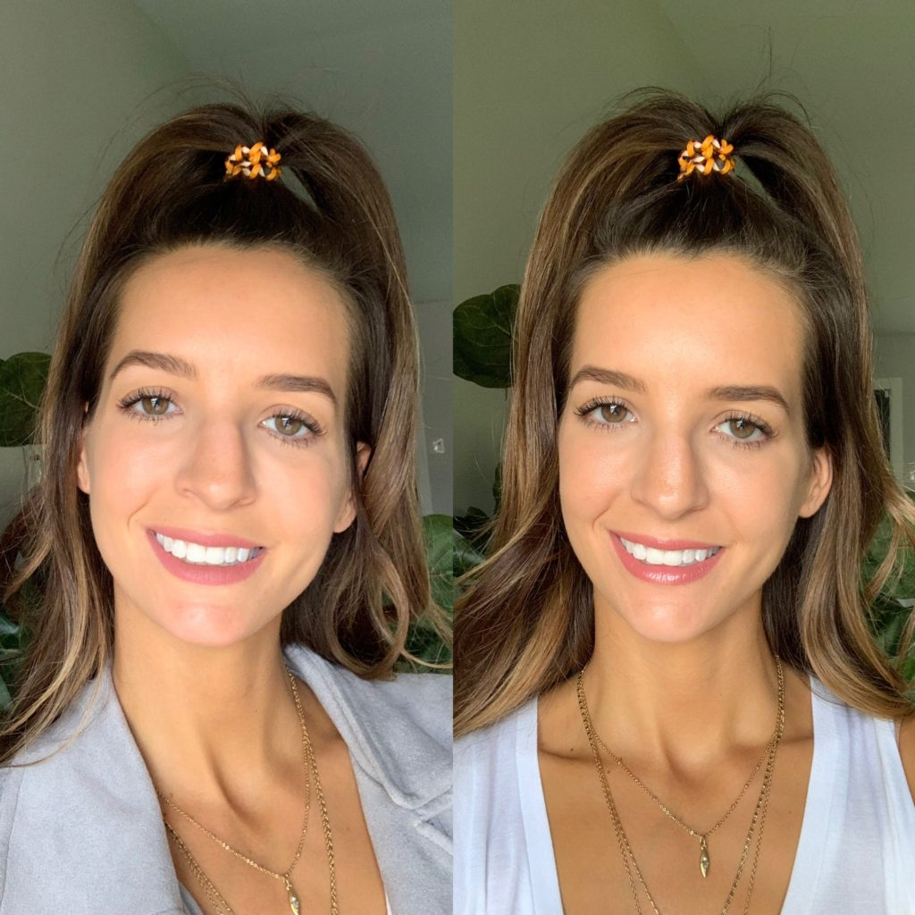 Chin and Jaw Fillers in Dallas- Before and After Photos